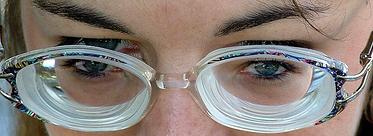 """22a22e2da É exatamente dessa característica das lentes para miopia que surgiu o  clássico termo – jocoso – """"óculos de fundo de garrafa"""" (objeto obrigatório  numa ..."""